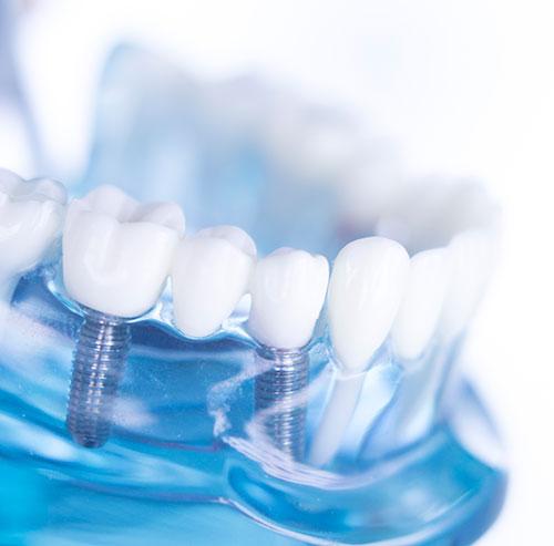 Dental Implants in Washington, DC - L'Enfant Dental