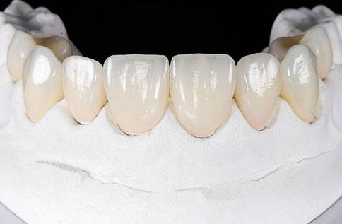 Porcelain Veneers in Washington, DC - L'Enfant Dental