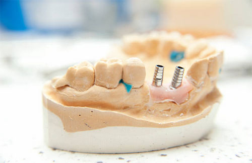 Implant-Supported Dentures in in Washington, DC - L'Enfant Dental