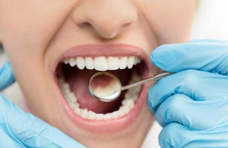Dental Bonding in Washington, DC - L'Enfant Dental